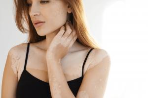 Special Vitaligo Cover Up Make Up