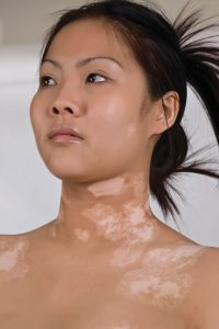 What is Vitiligo? Causes, Treatments and Impact on Lives - Colourderma