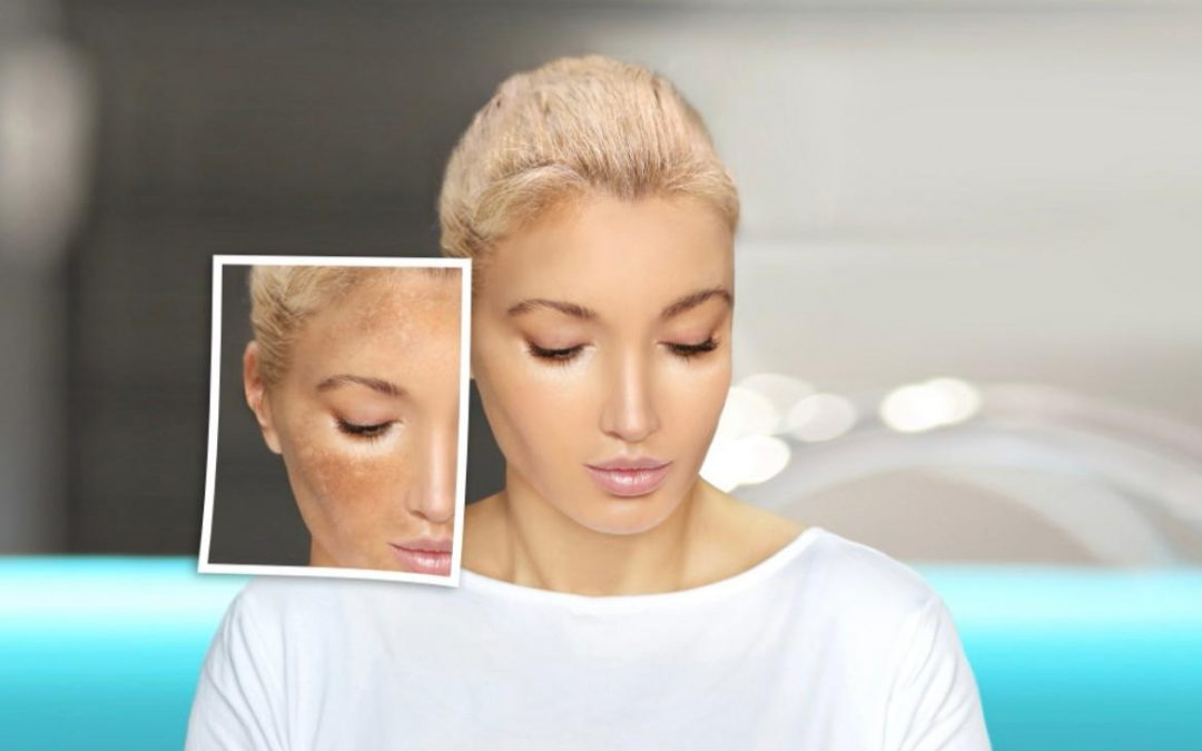 What is Hyperpigmentation? Colourderma 2021