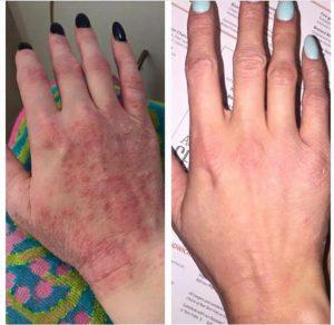 What is Eczema? - Colourderma 2021